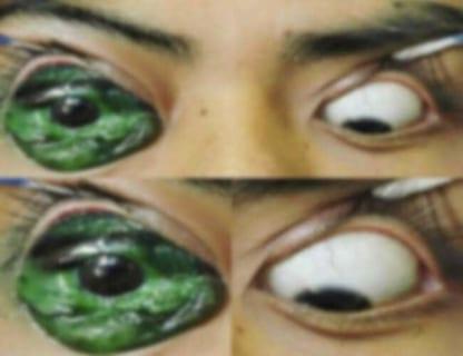 【閲覧注意】眼球にタトゥーを入れたDQN、2時間後、心の底から後悔する…(1枚)