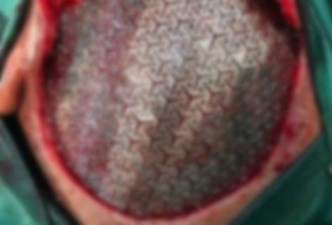 【閲覧注意】金属製の頭蓋骨をセットされた人間、カッコ良すぎる(画像あり)