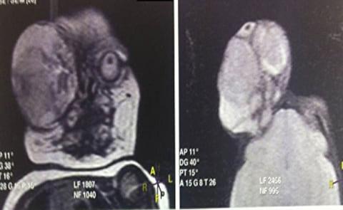 【閲覧注意】「このレントゲン写真」の人間を、実際に見る勇気はありますか…?