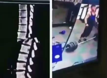 【衝撃映像】ジムで筋トレ中に「背骨が一瞬で折れた」人間の動き、怖い…