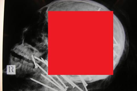【閲覧注意】ネイルガン(くぎ打ち機)を頭に34発打ち込まれた人間のレントゲン写真、ヤバい