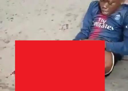 【閲覧注意】サッカー少年、事故で足がこうなって精神崩壊…