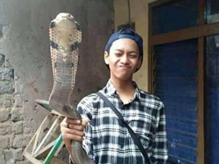 【閲覧注意】キングコブラに噛まれた人間が死ぬ直前の画像、逆に怖いと話題に