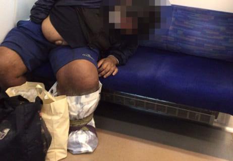 【閲覧注意】糖尿病を放置してる男に足を見せてもらった・・・(動画)