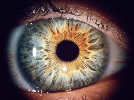 【閲覧注意】コカインを20年吸って幻覚を見続けた男の「目」、ヤバすぎる