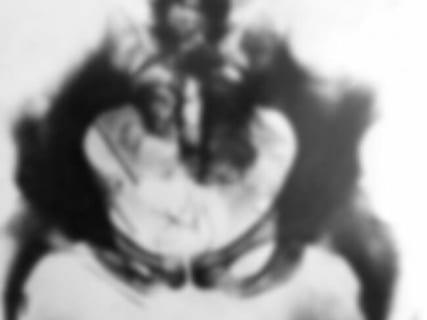 【閲覧注意】怖い画像。400人を殺害した殺人鬼をX線撮影したら恐ろしいモノが写った