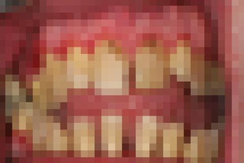 【閲覧注意】20年歯磨いてない俺が歯医者行った結果wwwww(画像あり)